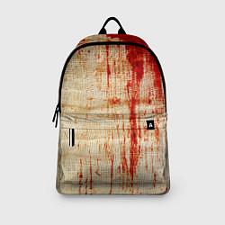 Рюкзак Бинты 2 цвета 3D — фото 2